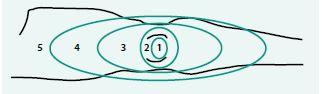 Obr. 3. Skóre mramoráže dolní končetiny. Upraveno podle [12]