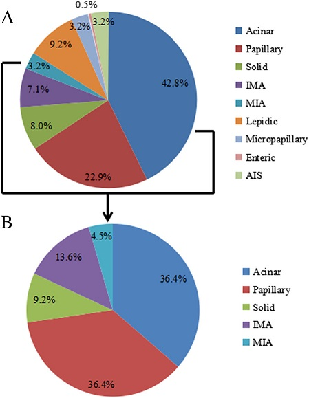 Histologic subtype distribution of the 437 EGFR wild type and 22 HER-2 mutation samples. a Acinar and papillary are the most common histologic subtypes in lung adenocarcinoma; b HER-2 mutations occurred in acinar, papillary, solid, IMA, and MIA subtypes, other subtypes were not found (IMA, invasive mucinous adenocarcinoma; MIA, minimally invasive adenocarcinoma)