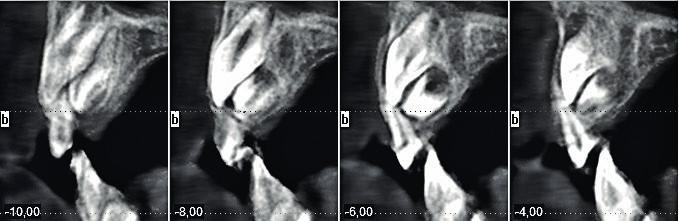 CT vyšetření