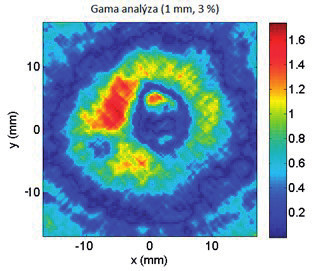 Porovnání dávkových distribucí metodou gama analýzy (1 mm, 3 %).