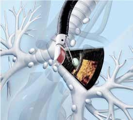 Použití EBUS k cílené biopsii uzliny