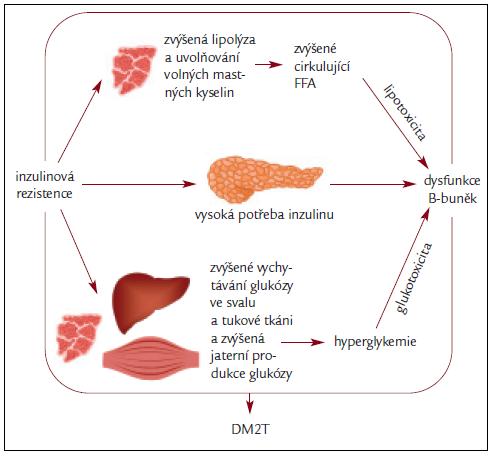 Schéma 1. Inzulinová rezistence a inzulinová deficience základ DM2T.