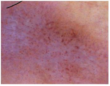 Lupus erythematosus chronicus