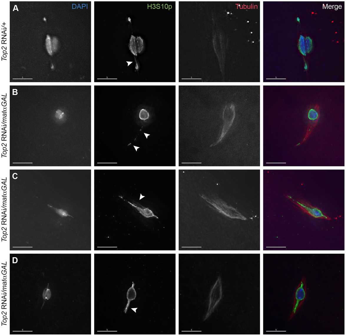 Expression of a <i>Top2</i> RNAi construct in the ovary leads to abnormal chromosomal projections during meiosis I.