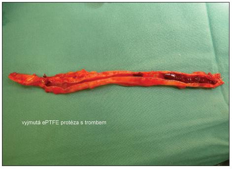 Vyjmutá ePTFE protéza s trombem Fig. 3. Removed ePTFE prosthesis with thrombus