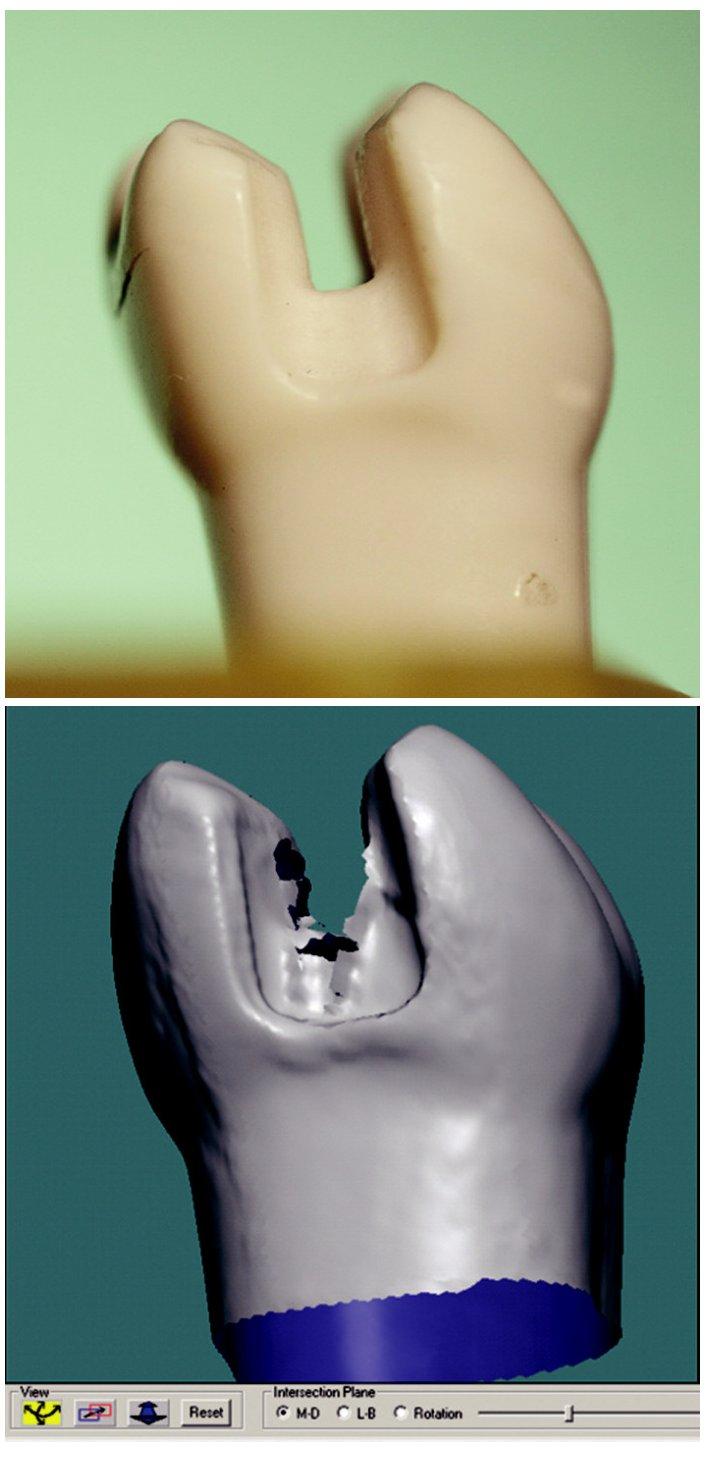 a) Zub 36 - MD pohled. b) Artefakt - roztřepení okraje.