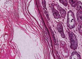Epidermoidní cysta byla dříve řazena jako samostatná nenádorová jednotka. Dnes je nutné ji klasifikovat jako teratom. HE 200x.