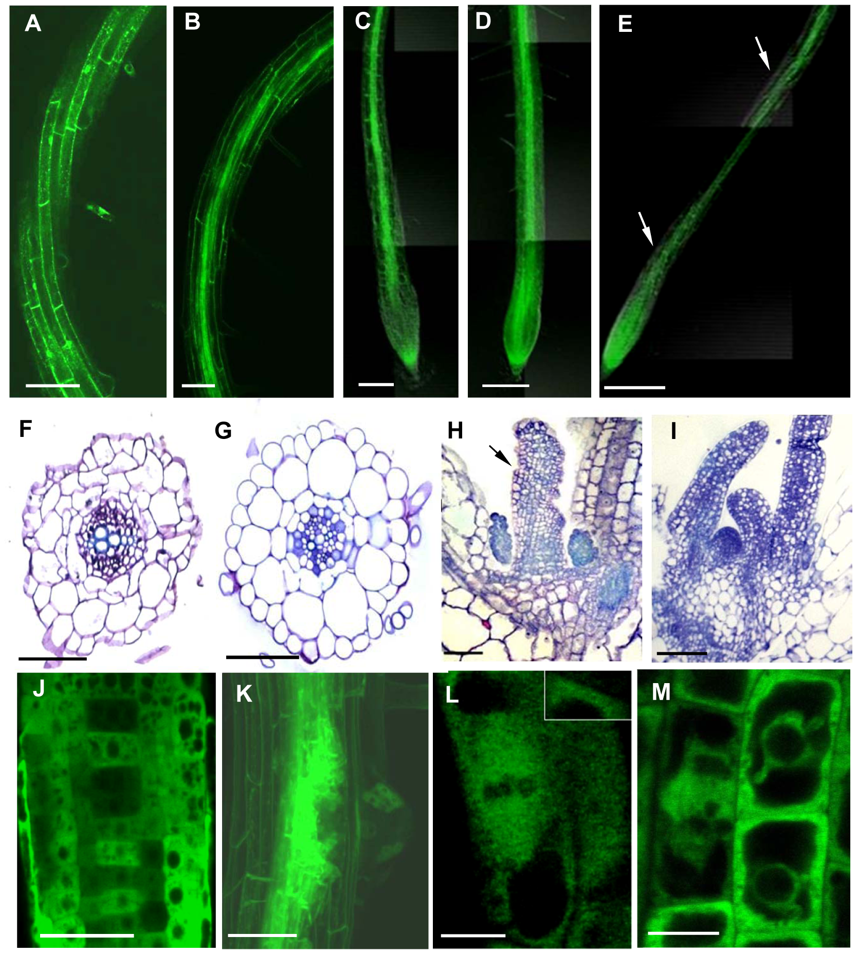 Ectopic Expression of γ-Tubulin in <i>Arabidopsis thaliana</i> Seedlings Causes Root Twisting and Leaf Curling.