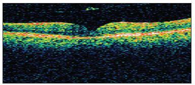 OCT obraz uzavretej diery sietnice bez zmeny nálezu uvoľnenej zadnej kôry sklovca u pacienta č. 4