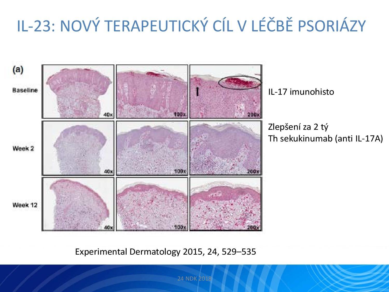 IL-23: Nový terapeutický cíl v léčbě psoriázy - 5