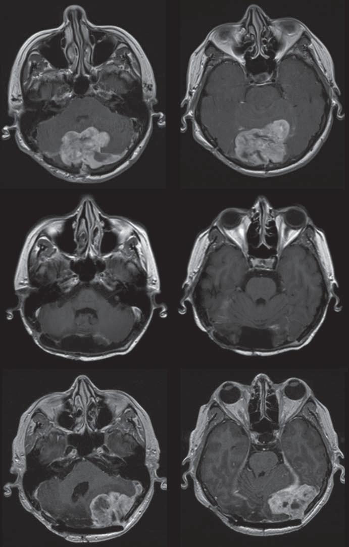 Pacientka s anaplastickým meningiomem po radikální resekci a s výskytem časné recidivy kontralaterálně – na sérii obrázků v dolní části.