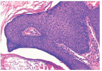 Histologický nález z lézie (HE 100x) Priečny prierez vulgárnej veruky histomorfologicky pripomínajúcej kožný papilóm s hyperplastickým pravidelným dlaždicovým epitelom s hyperkeratózou s parakeratózou. V stróme je vyznačená papilomatóza mierneho stupňa s lymfocytovou infiltráciou, najmä perivaskulárne.