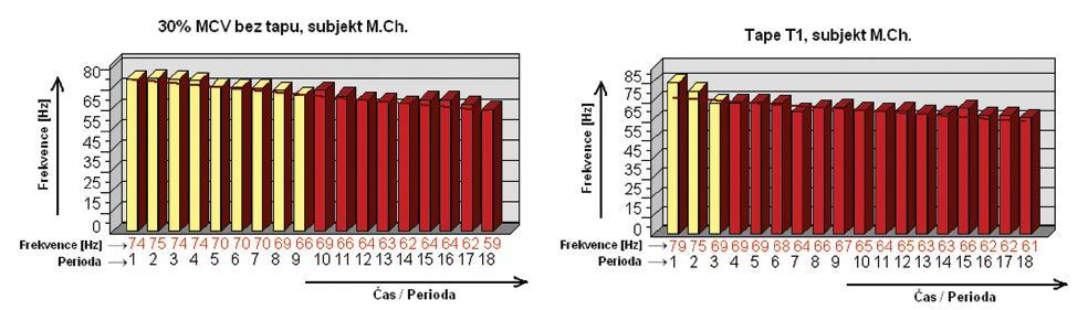 Obr. 9, obr. 10. Ukázka histogramů vytvořených statistickými funkcemi programu MyoResearch XP Master Edition 1.06.21, které zachycují průběh změn hodnot mediánu frekvence během 3minutové izometrické svalové kontrace o intenzitě 30% MVC pro obr. 9 ve stavu bez tapu, obr. 10 s tapem T<sub>1</sub>,; žlutou barvou jsou vyznačeny periody, ve kterých nebyl pokled mediánu frekcence větší něž 10 % ve srovnání s počáteční frekvencí.