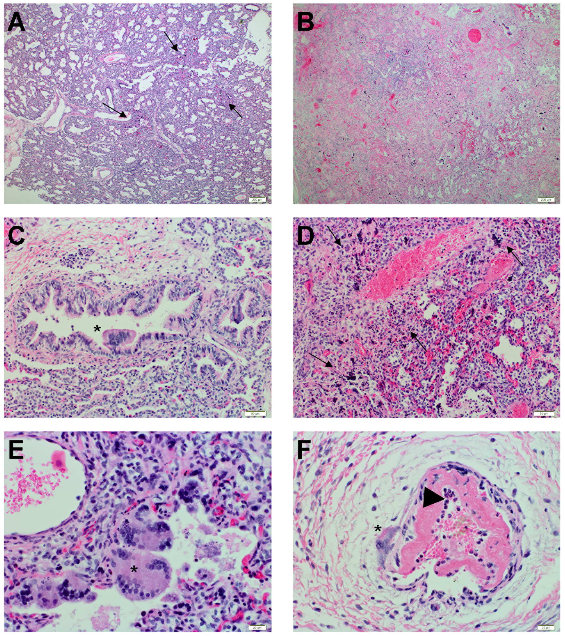 Histopathological changes during Nipah virus infection in human lung xenografts.