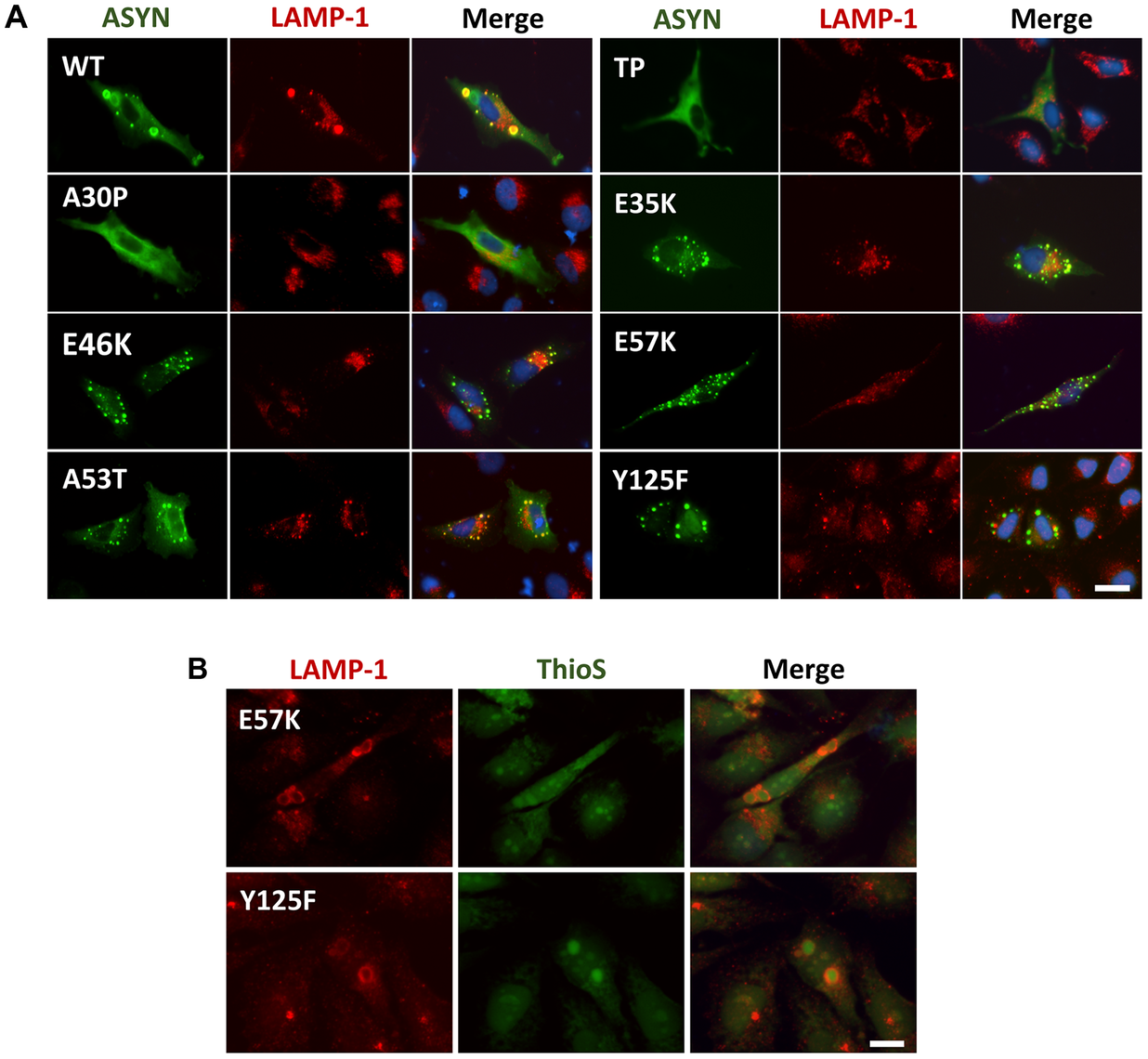 ASYN partially co-localizes with endosomes/lysosomes.