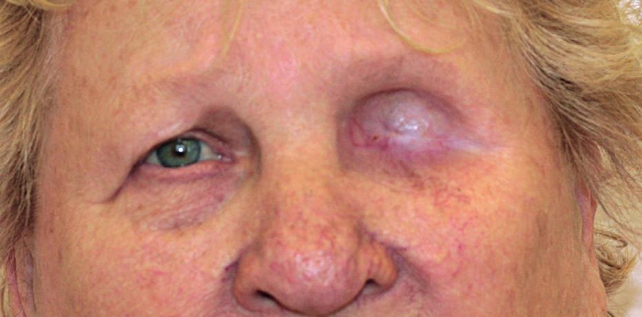 Pacientka s přeepitelizovanou trepanační dutinou.
