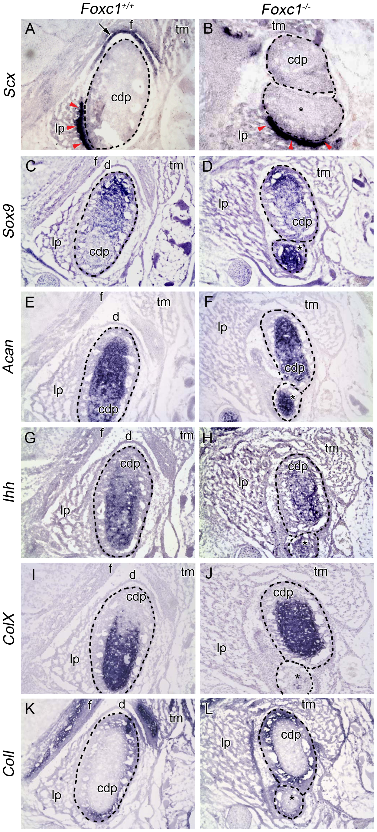 Molecular analysis of developing TMJ in <i>Foxc1<sup>−/−</sup></i> embryos.