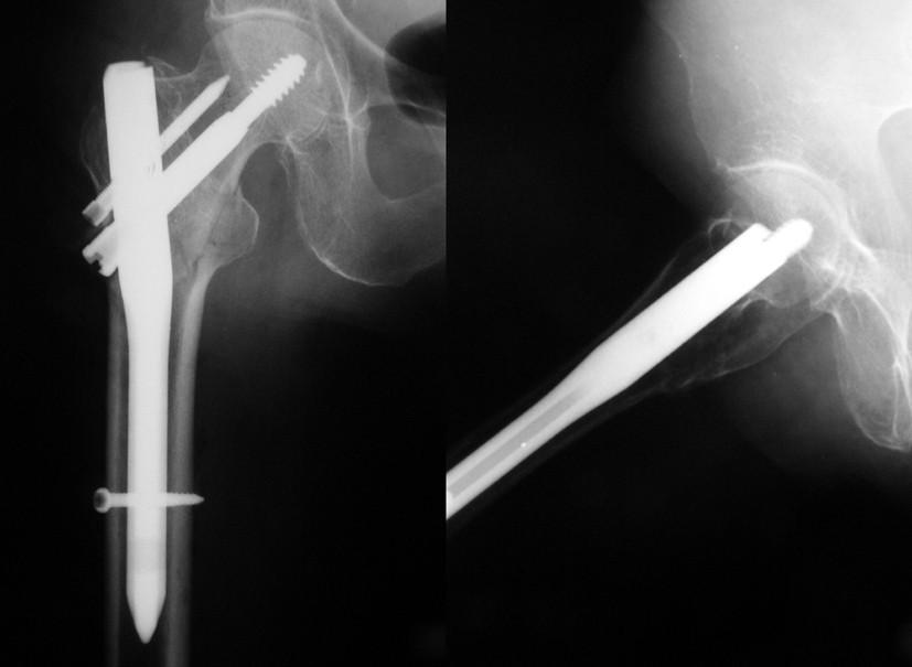 Obr. 2b: Subtrochanterická zlomenina po ošetření hřebem Targon PF