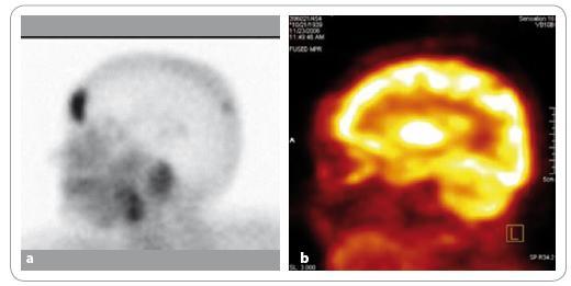 Na <sup>99m</sup>Tc-MIBI scintigramu hlavy (a) lze dobře diferencovat ložisko patologické akumulace radiofarmaka v kalvě frontálně. Při <sup>18</sup>F-FDG PET vyšetření téhož pacienta (b) není ložisko dobře patrné kvůli vysoké fyziologické akumulaci FDG v mozkové tkáni. Při FDG-PET vyšetření by mohlo toto ložisko uniknout detekci.