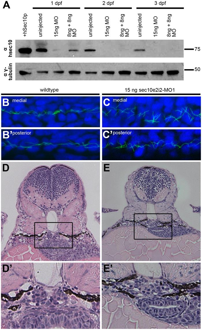 sec10MO embryos show abnormal pronephric development.