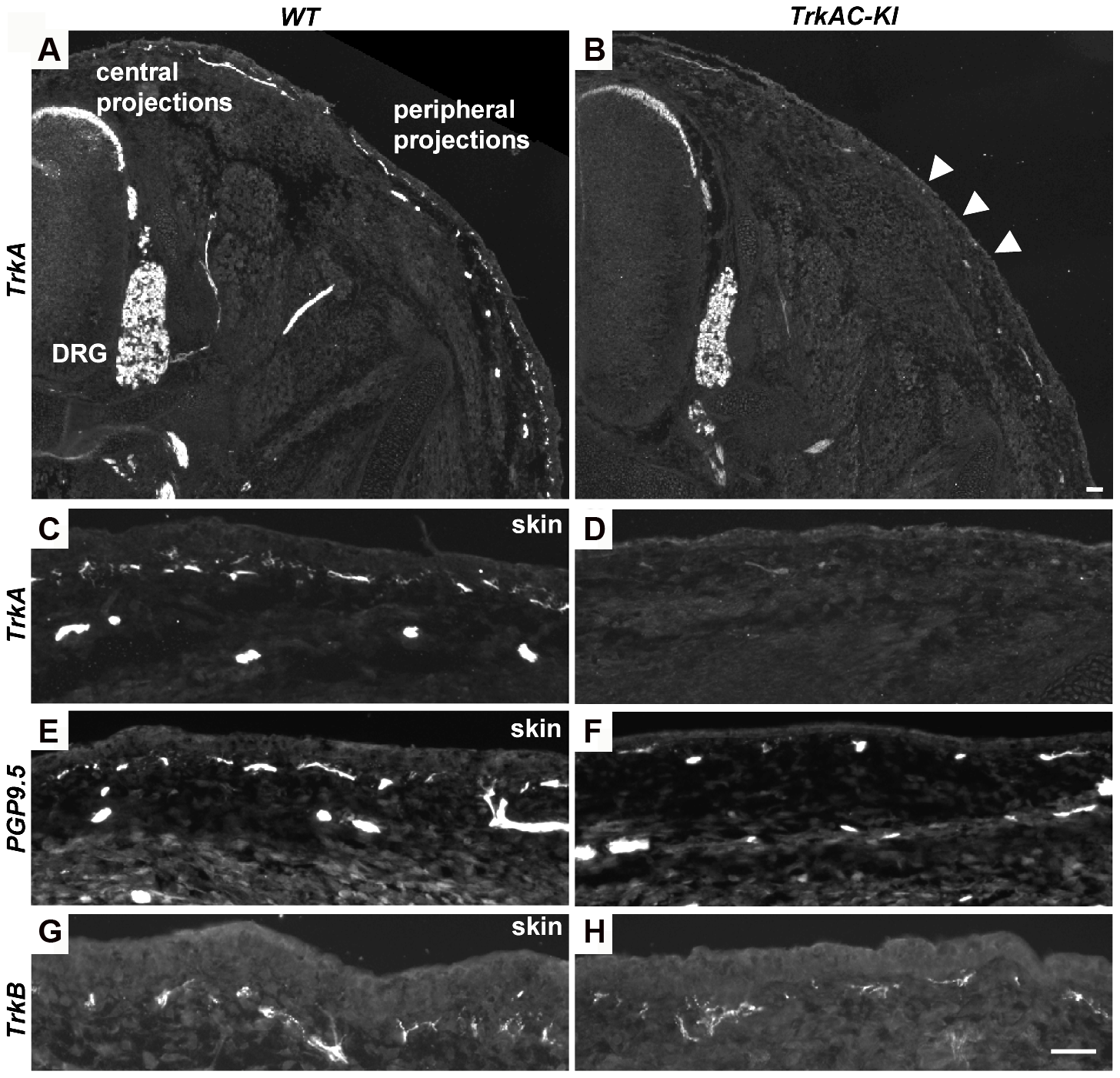 Peripheral innervation defect is evident during embryonic development.