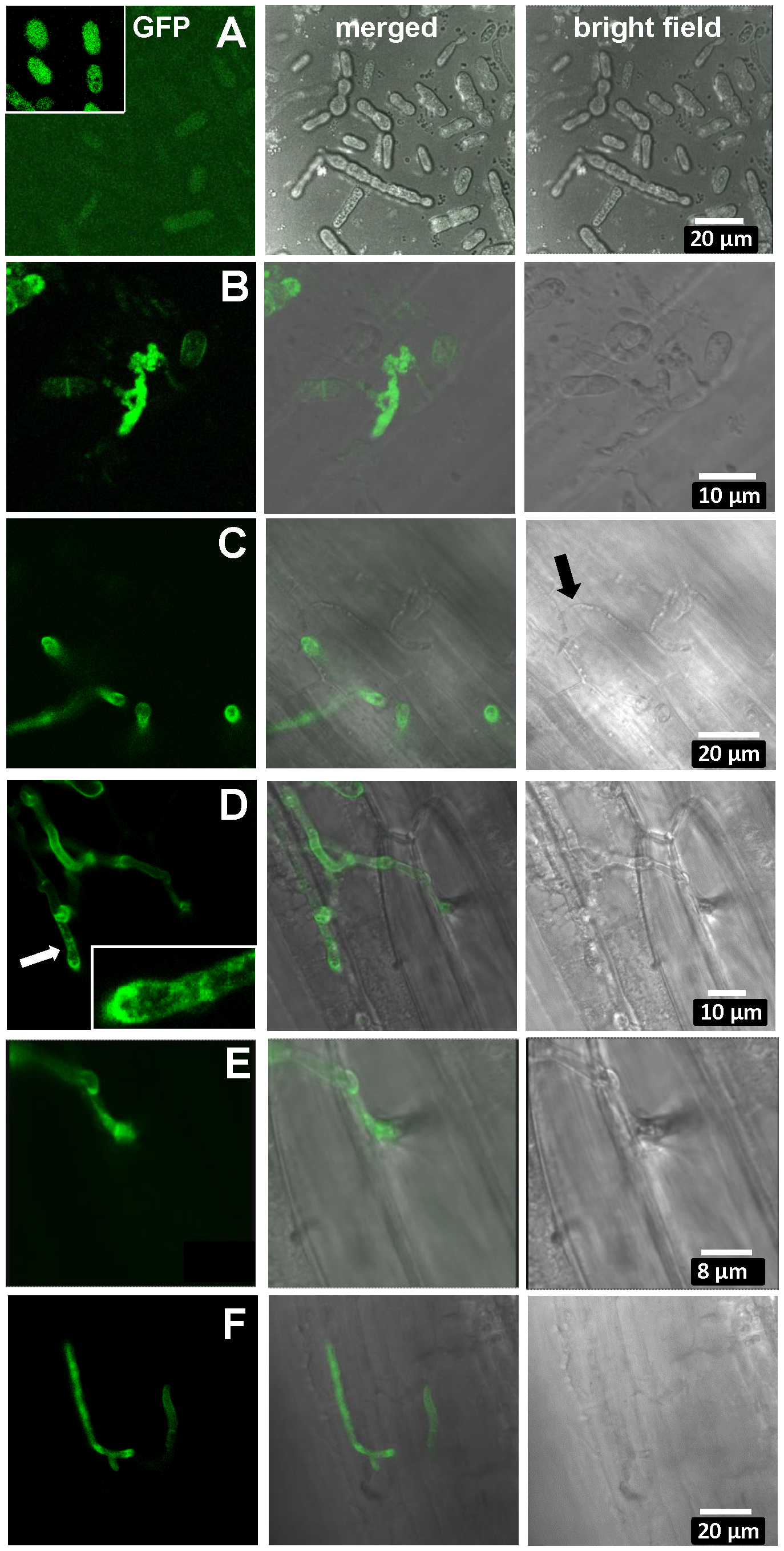 Expression of UhAVR1:GFP chimers during infection.