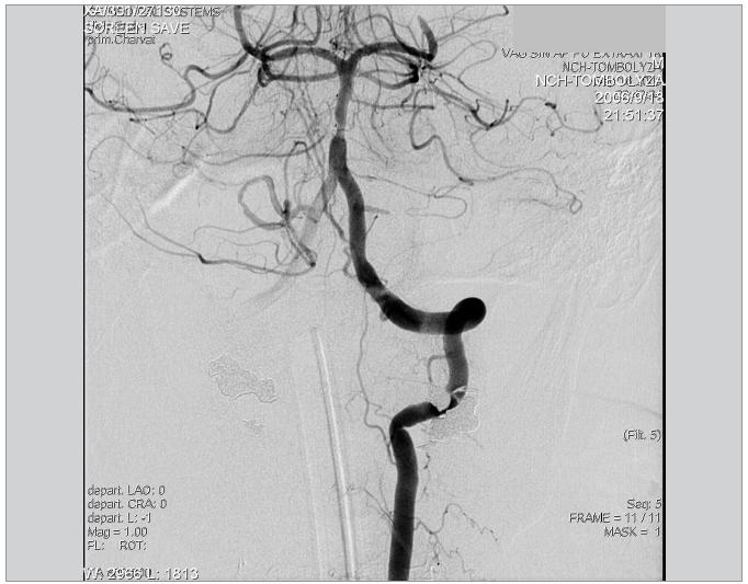 Kontrolní DSA levé AV po embolektomii, nález je výrazně zlepšen. Patrná je stenóza na a. basilaris a reziduální trombus v oblasti P3 a. cerebri posterior vlevo.