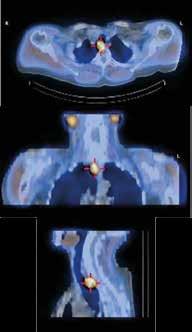 Zobrazení příštítného tělíska scintigrafií MIBI
