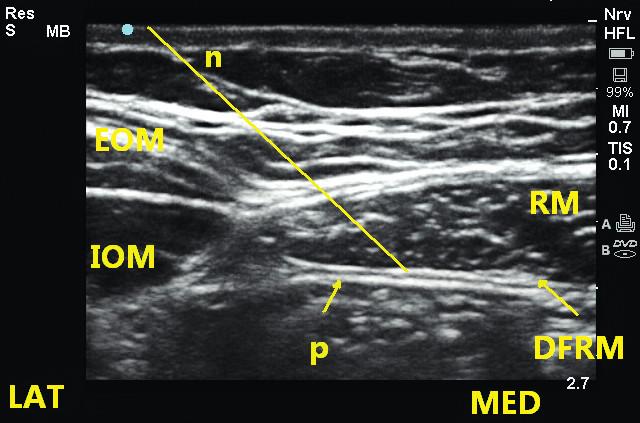 Obr. 4a, 4b Technika provedení rectus sheath bloku v úrovni pupku RM – m. rectus abdominis, DFRM – dorzální fascie m. rectus, P – peritoneum, n – jehla.