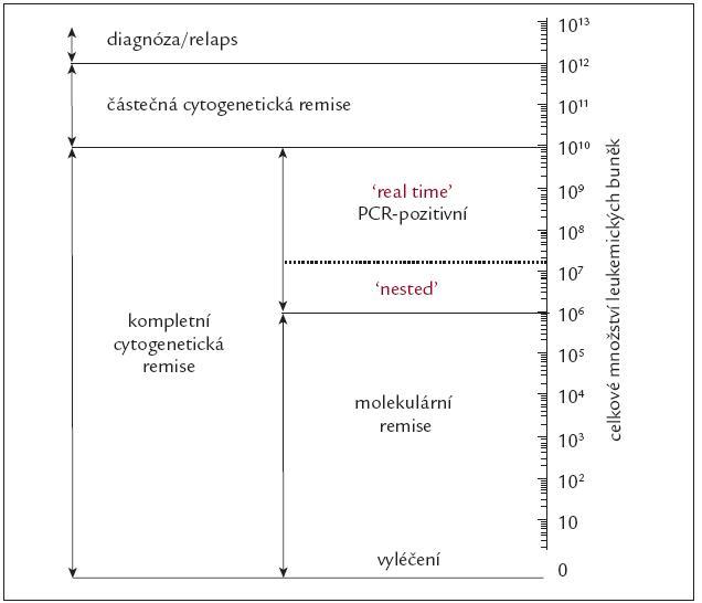 Schematické znázornění celkového počtu Ph<sup>1</sup> pozitivních buněk v těle nemocného s CML v jednotlivých fázích choroby.