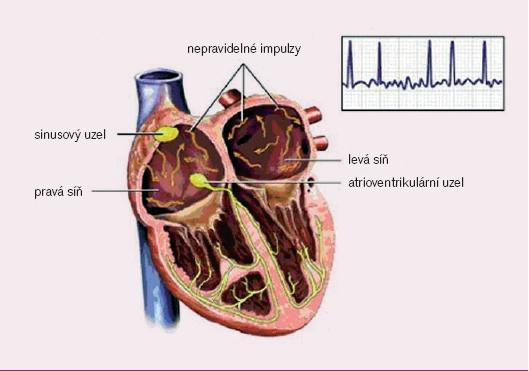Elektrofyziologie fibrilace síní (převzato z http://catalog.nucleusinc.com).