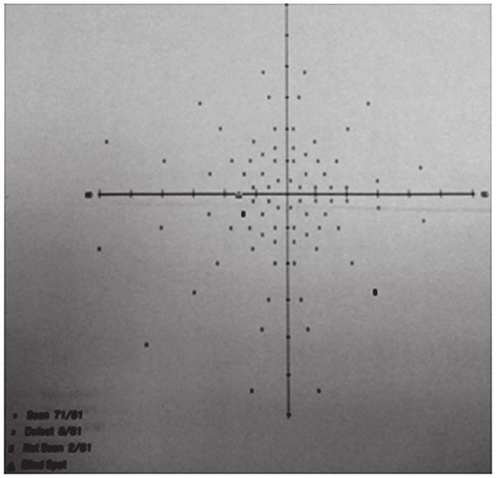Vstupní perimetrické vyšetření s rozšířením Mariottova bodu na levém oku