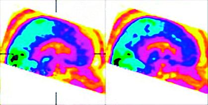 Obr. 2a Zobrazení cerebrálního metabolismu pacientky s akinetickým mutismem pomocí PET-CT v sagitální rovině po podání placeba: oranžová barva značí nízkou aktivitu v oblasti gyrus cinguli (volně podle [18])