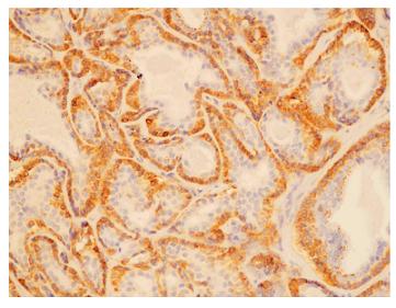 Primárny pleomorfný adenóm – epiteliálna komponenta. Silná imunopozitivita bcl-2 proteínu vo vonkajšej vrstve buniek štruktúr napodobňujúcich exkretorické dukty. Luminálne bunky sú negatívne (x 200).