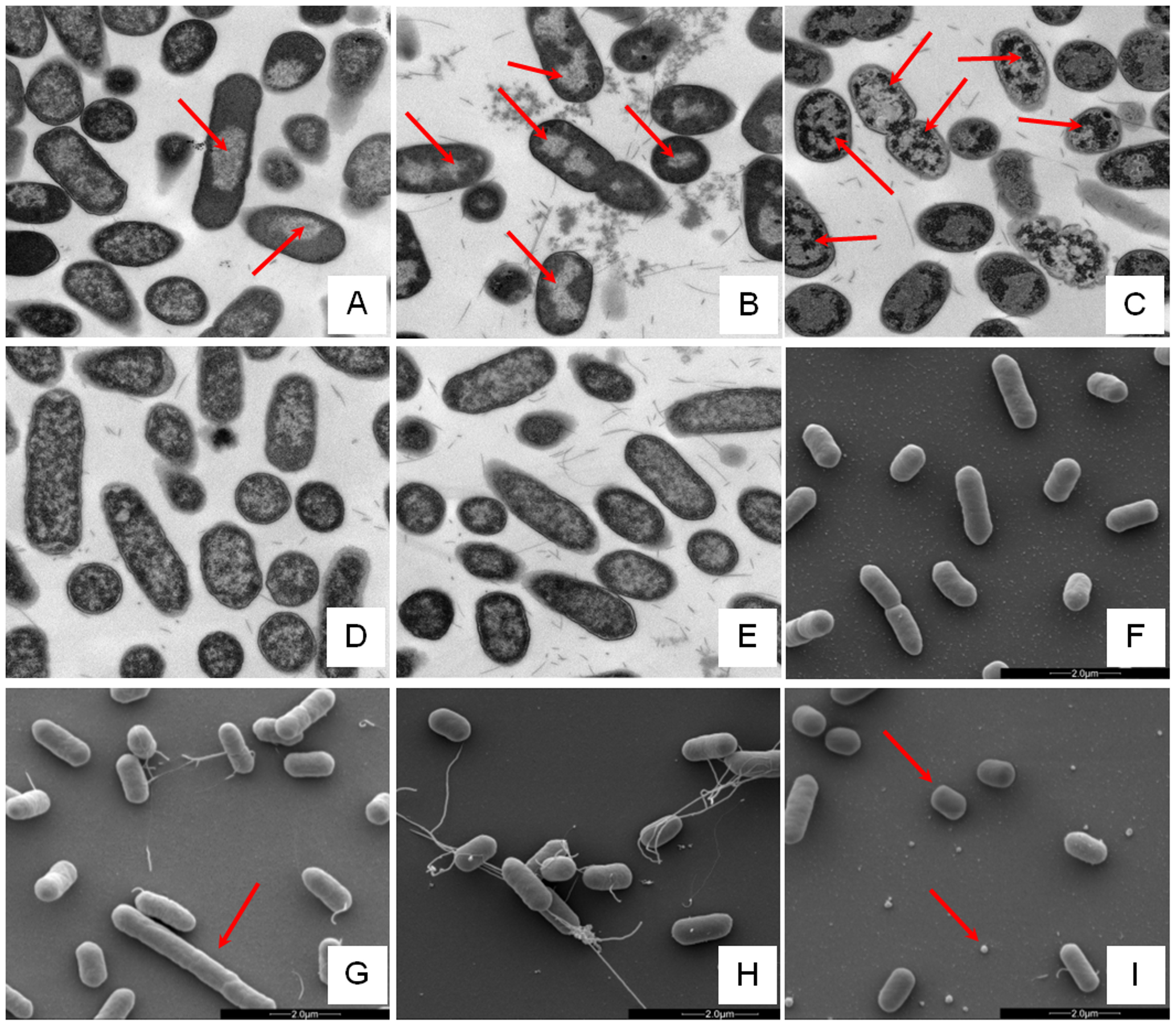 Electron microscopic analysis of <i>E. coli</i> response to AMP challenge.