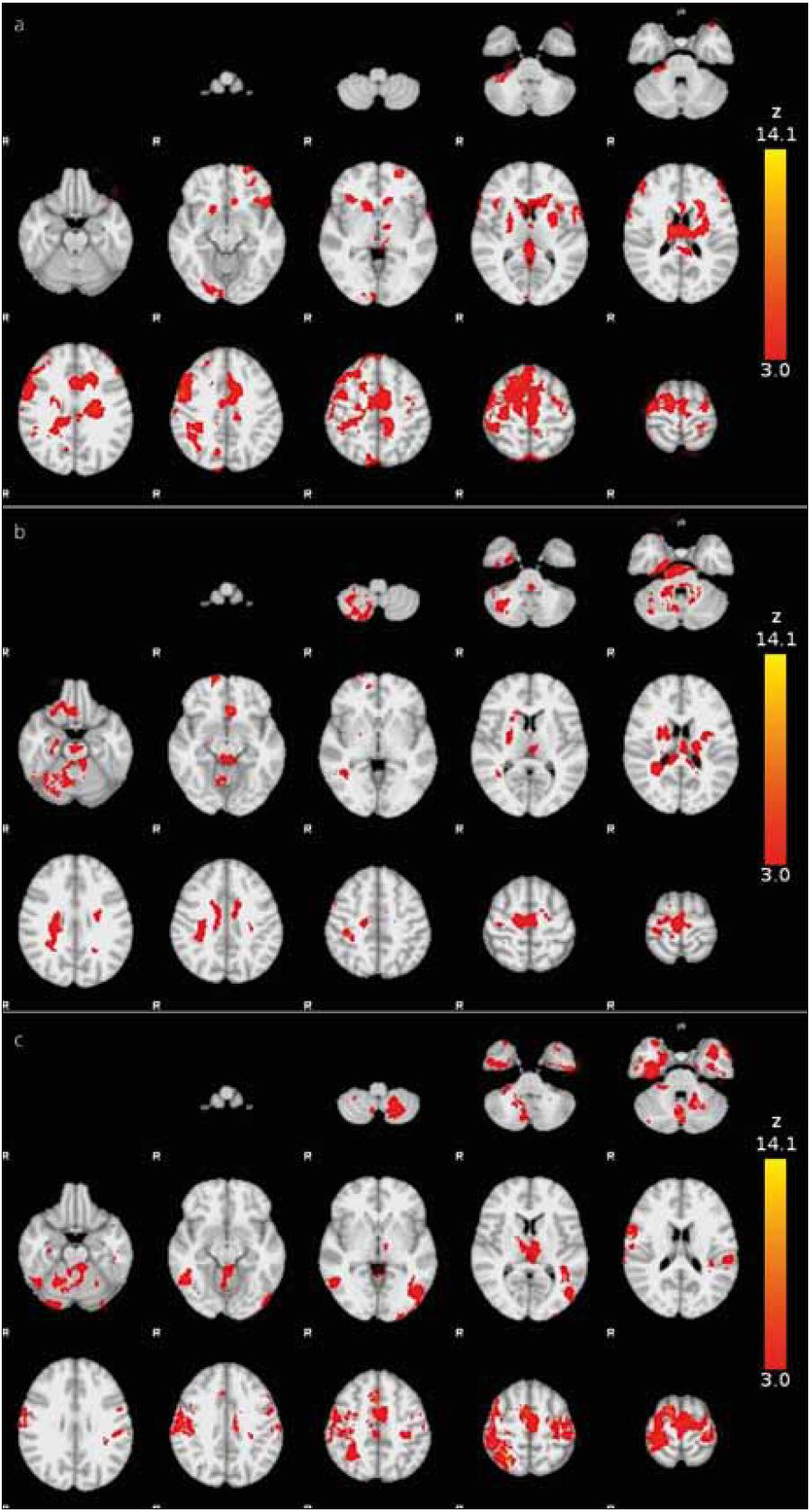 Fig. 1. Functional MRI activation during a real finger movement (a) before BoNT treatment, (b) four and (c) eleven weeks following BoNT administration.
