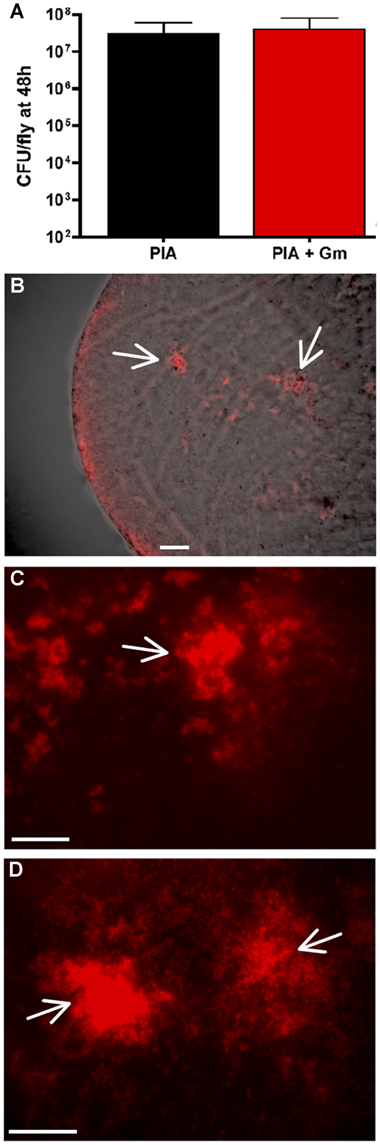 PAO1 (pCHAP6656) infection of the <i>Drosophila</i> crop.