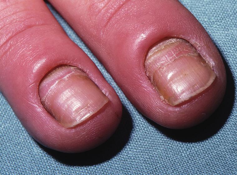 Kvasinková paronychia a onychomykóza – erytém, zduření a odchlípení kožní řasy nad lunulou, hnědavé zbarvení proximálních a laterálních částí nehtů, příčné rýhy s deskvamací