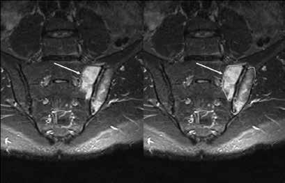 MRI STIR sekvence – vlevo periartikulárně na sakrální i ilické straně rozsáhlý edém kostní dřeně