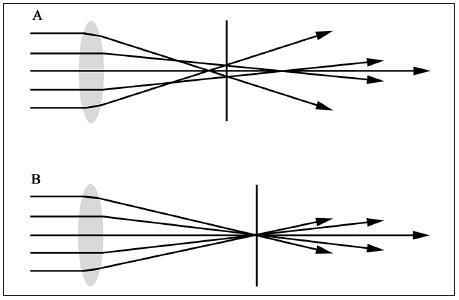 Schematické znázornenie sústredenia lúčov svetla mimo centrálnej optickej zóny pri A: sférickej šošovke, B: pri asférickej šošovke