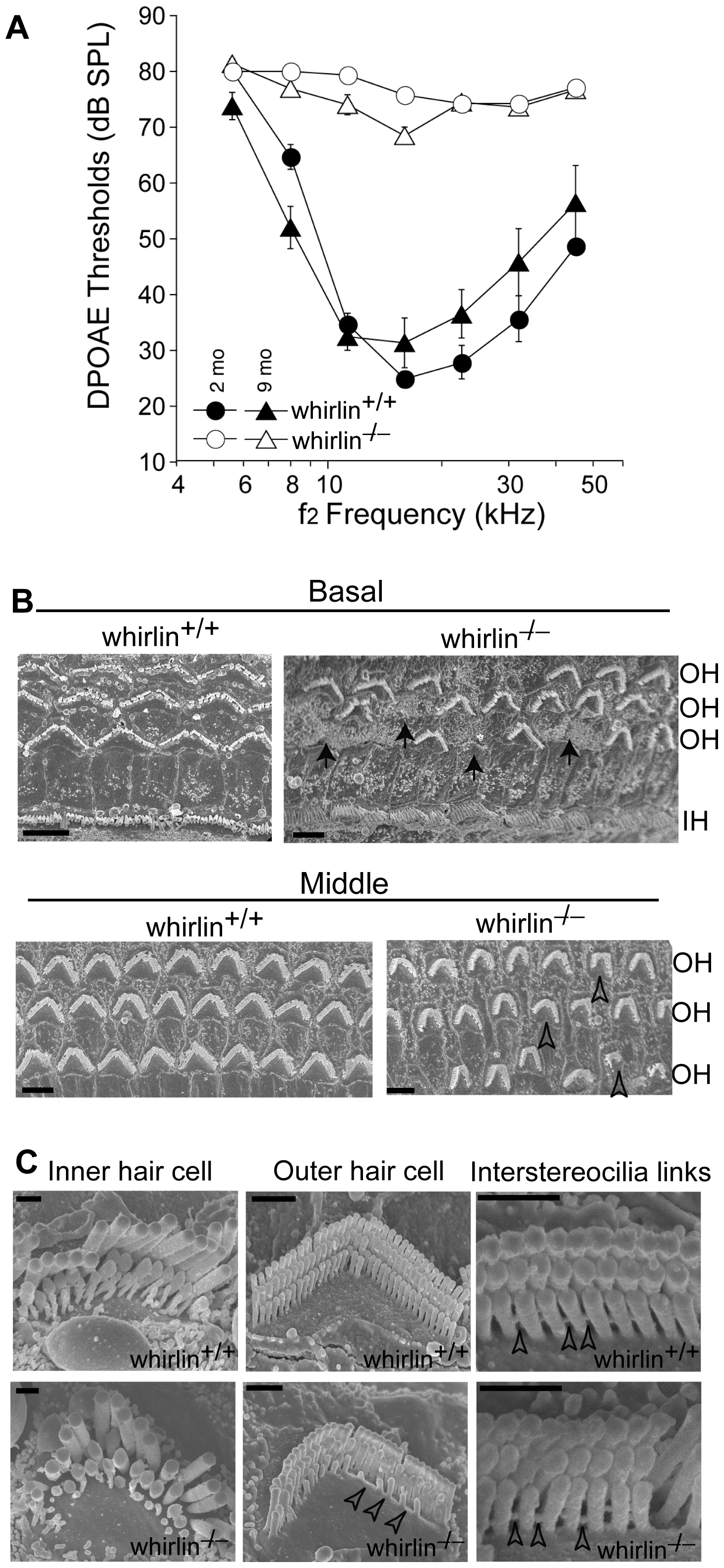 Whirlin knockout mice have non-progressive hearing defects.