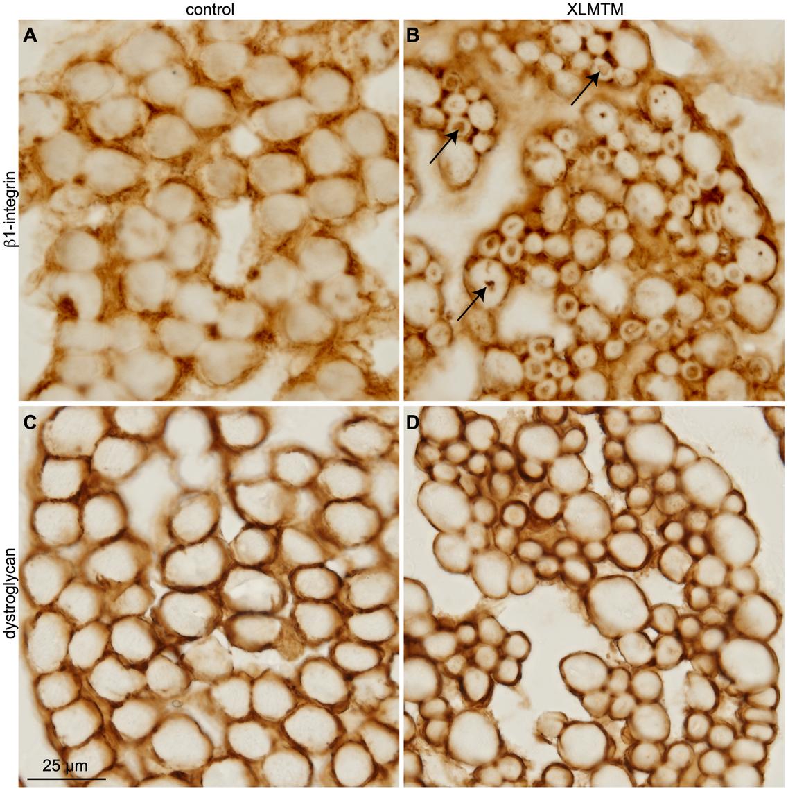β1-integrin is mislocalized to perinuclear inclusions in XLMTM myopathy.