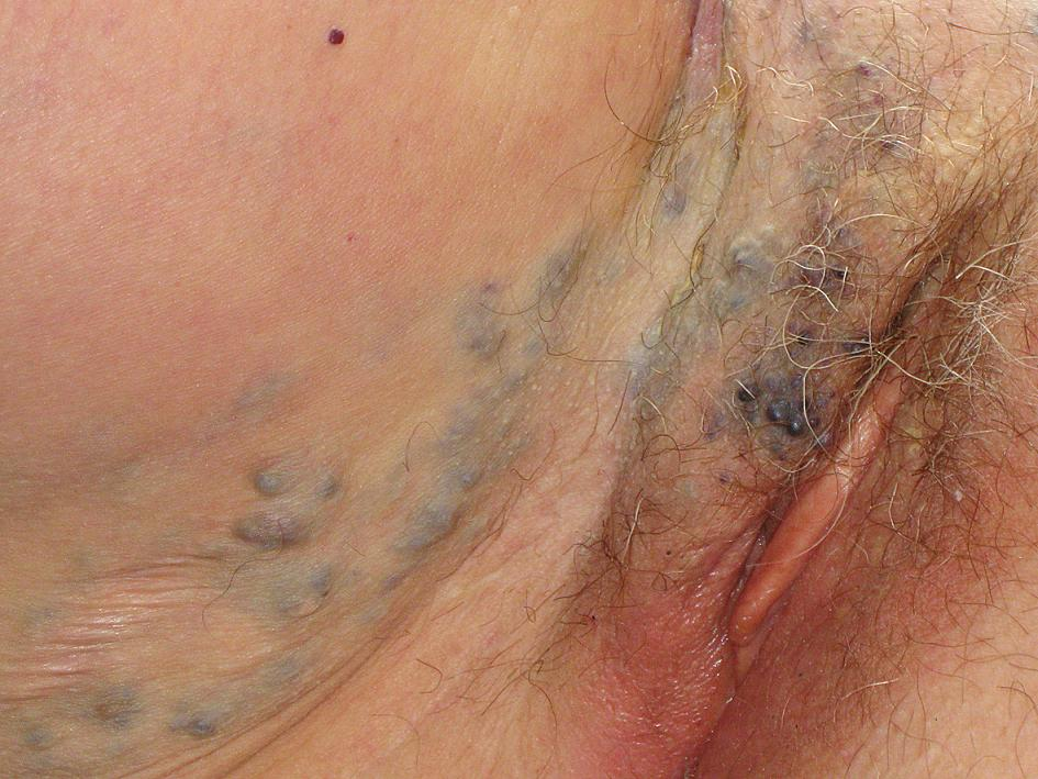 Kožní projev hemangiomu v oblasti vulvy a vnitřní strany stehna