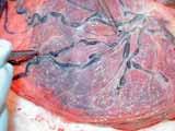 Anastomózy na povrchu placenty (převzato od Eurofoetus group).