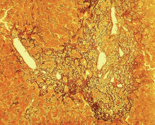 Fibrotizace a rozšíření portálních polí (barvení retikulin)