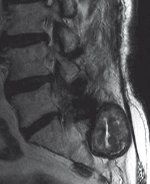 Fig. 3. MRI of the lumbosacral segment (T2-weighted sagittal image).