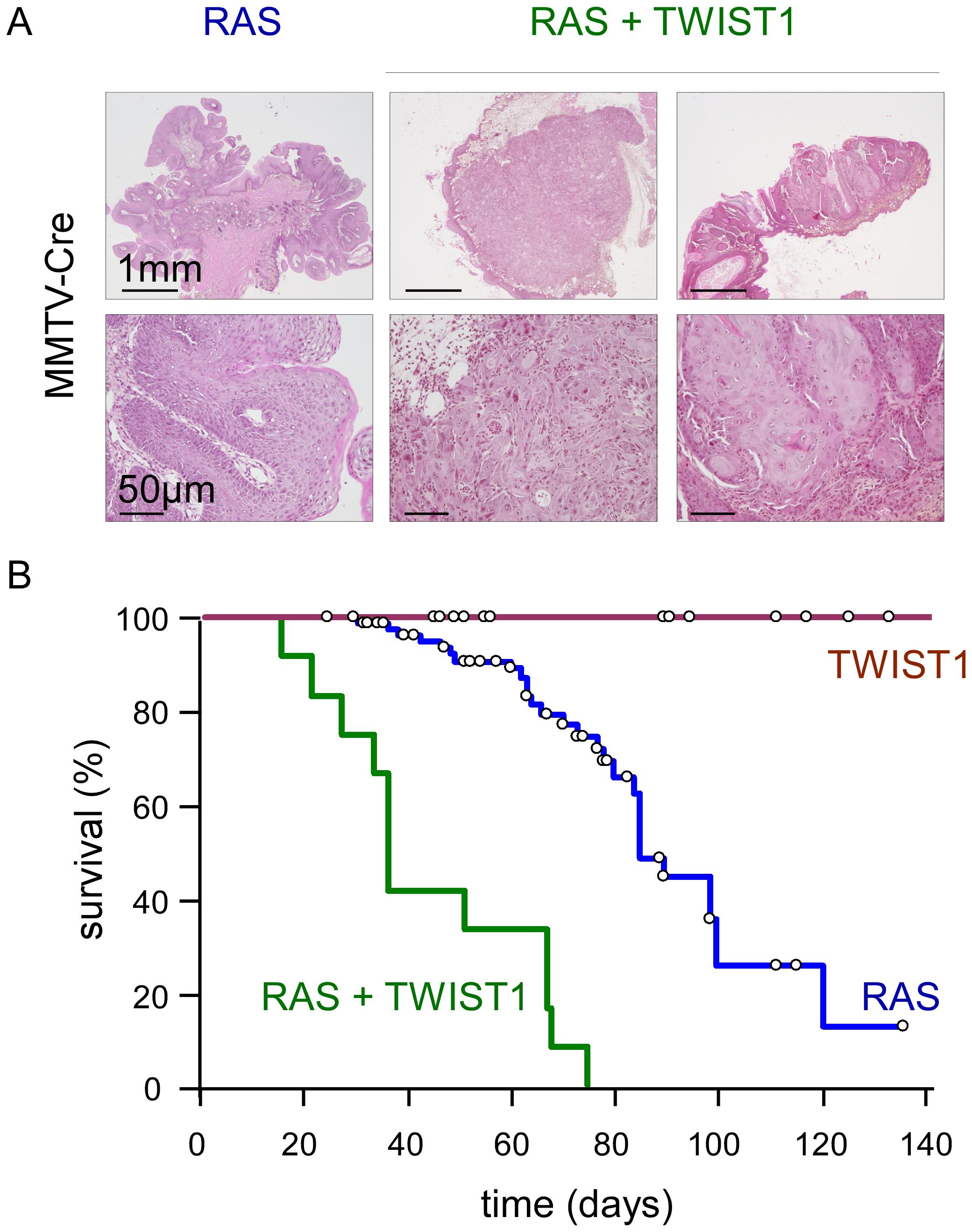 Twist1 promotes tumor progression <i>in vivo</i>.
