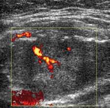 Maligní typ vaskularizace při kontrastním dopplerovském vyšetření. Průkazné jak periferní, tak centrální i penetrující cévy.