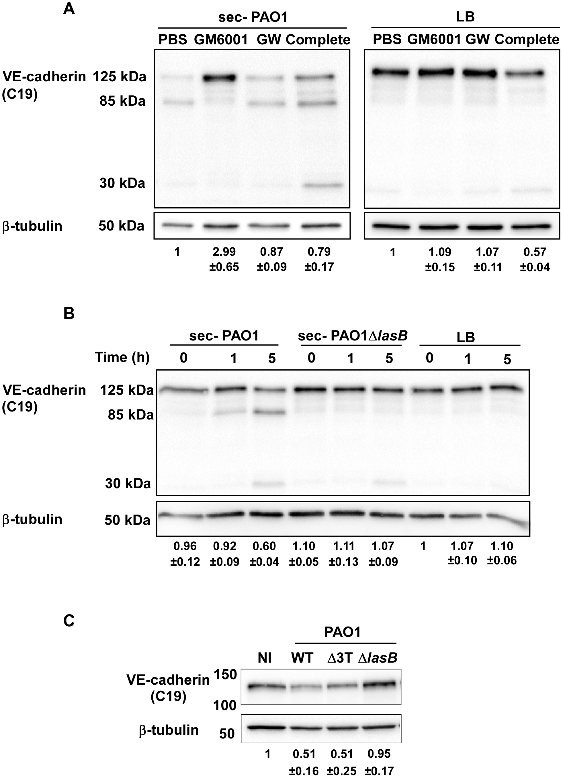 LasB protease is required for VE-cadherin cleavage.