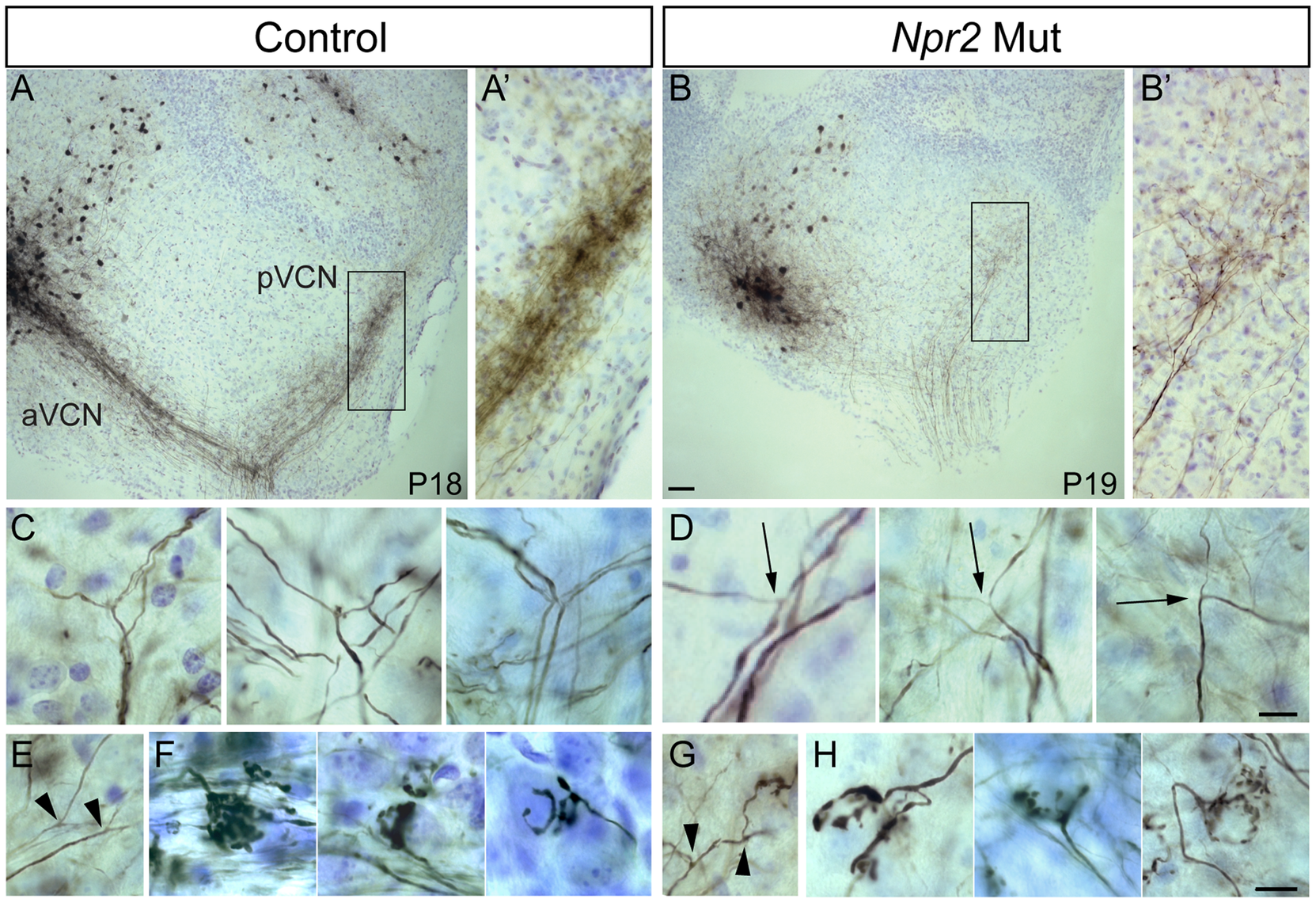 <i>Npr2</i> mutant SGN axons do not bifurcate properly but can form interstitial branches and morphologically normal synapses.